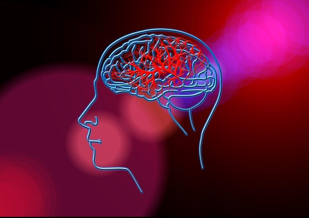 Metoda NDT-Bobath - zastosowanie w terapii po udarze mózgu